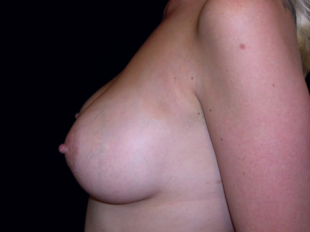 Breast Augmentation Gallery - Patient 39246072 - Image 10