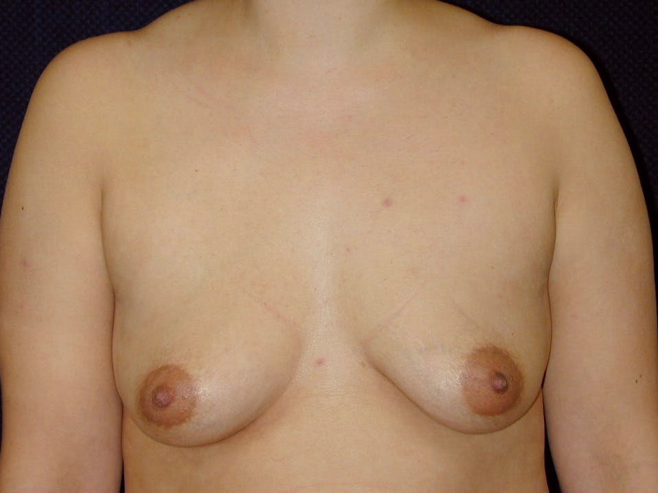 Breast Augmentation Gallery - Patient 39246074 - Image 1