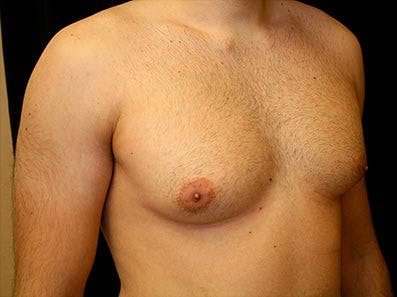 Gynecomastia Gallery - Patient 39246073 - Image 3
