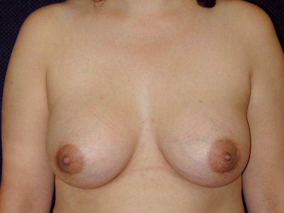Breast Augmentation Gallery - Patient 39246074 - Image 2