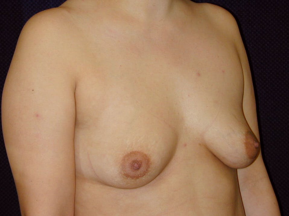 Breast Augmentation Gallery - Patient 39246074 - Image 3