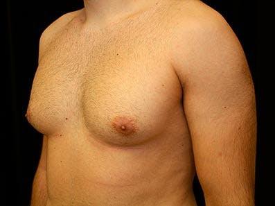 Gynecomastia Gallery - Patient 39246073 - Image 5