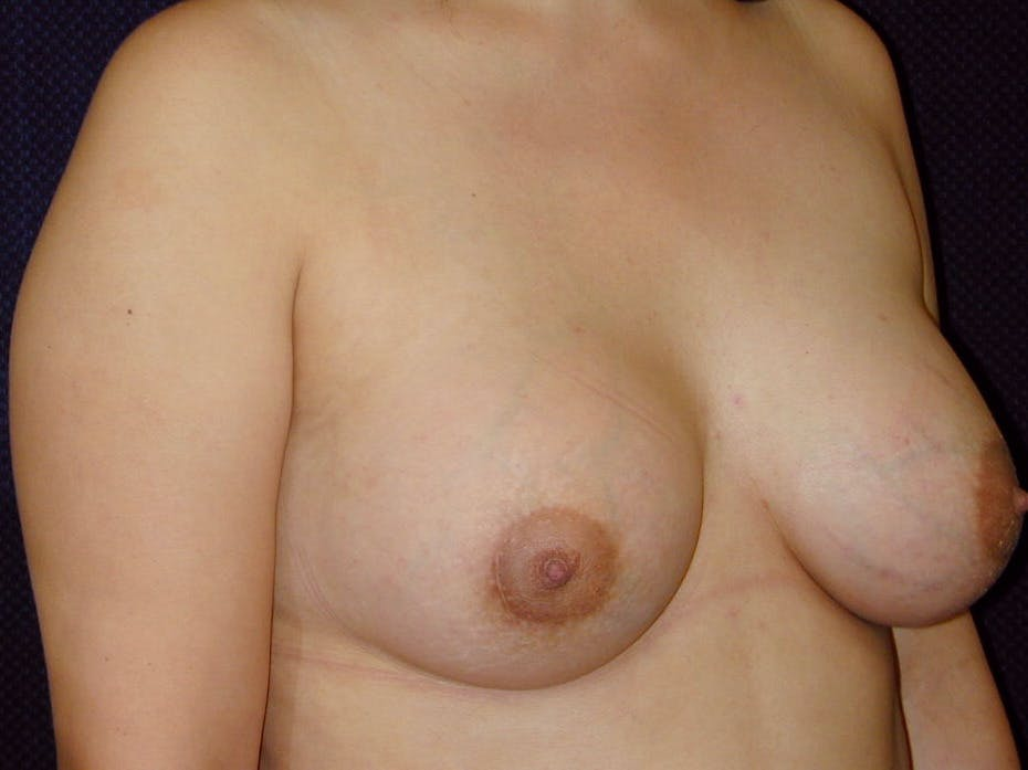 Breast Augmentation Gallery - Patient 39246074 - Image 4