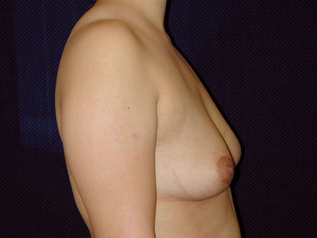 Breast Augmentation Gallery - Patient 39246074 - Image 5