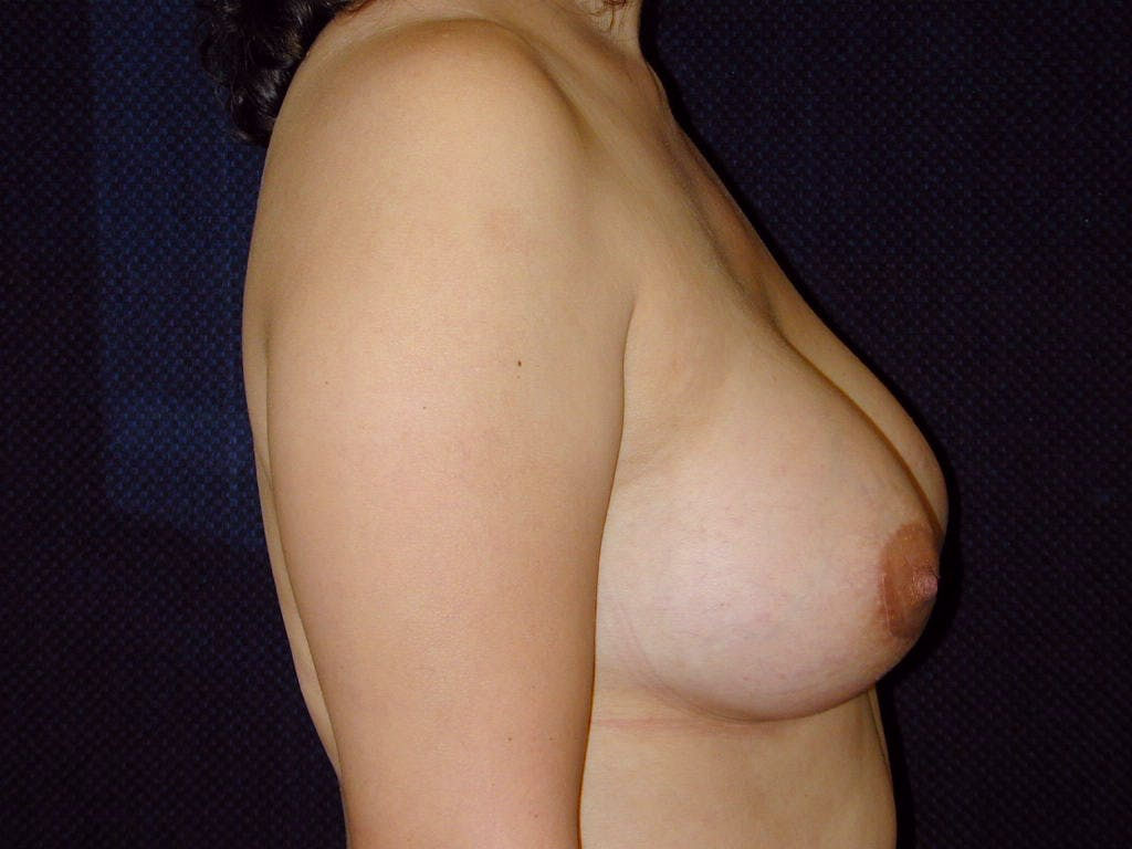 Breast Augmentation Gallery - Patient 39246074 - Image 6