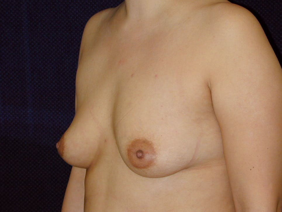 Breast Augmentation Gallery - Patient 39246074 - Image 7