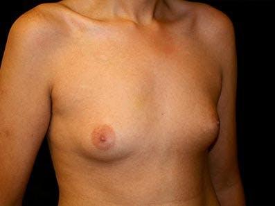 Gynecomastia Gallery - Patient 39246075 - Image 3