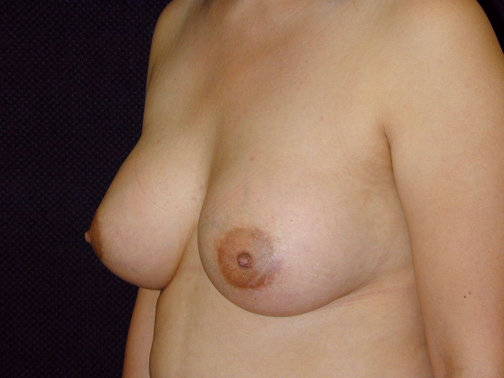 Breast Augmentation Gallery - Patient 39246074 - Image 8
