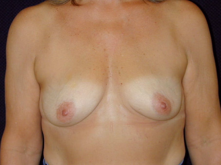 Breast Augmentation Gallery - Patient 39246078 - Image 1
