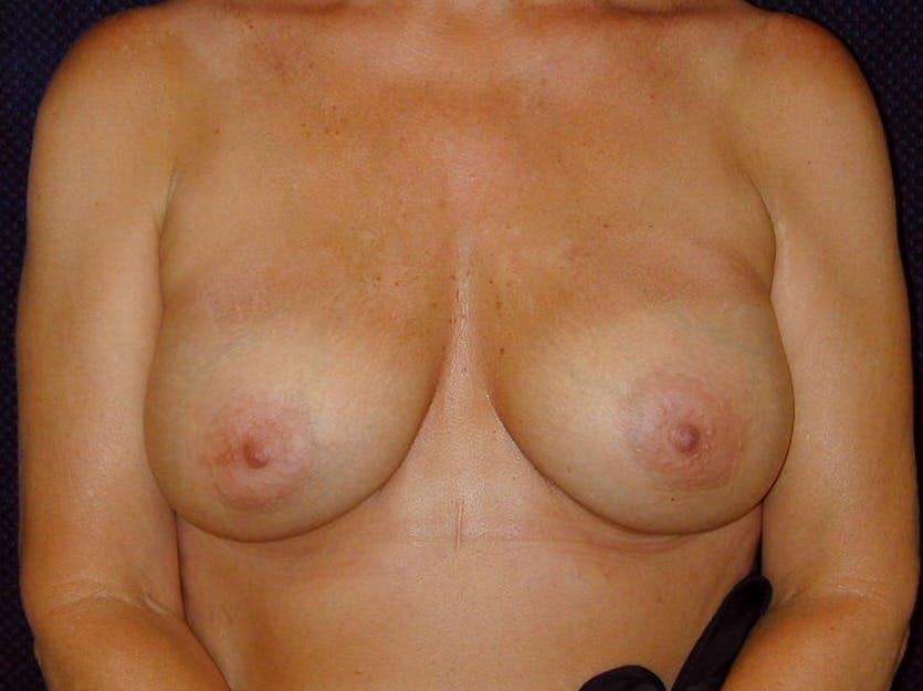 Breast Augmentation Gallery - Patient 39246078 - Image 2