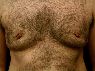 Gynecomastia Gallery - Patient 39246077 - Image 1