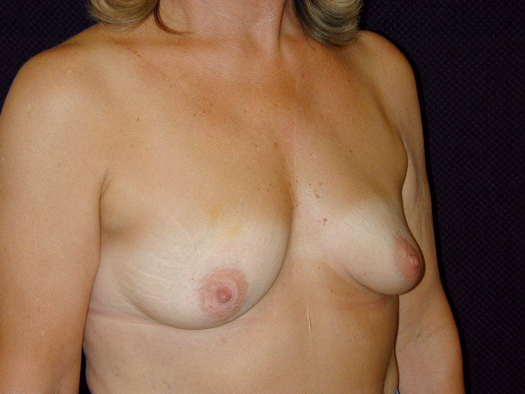 Breast Augmentation Gallery - Patient 39246078 - Image 3
