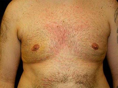Gynecomastia Gallery - Patient 39246077 - Image 2