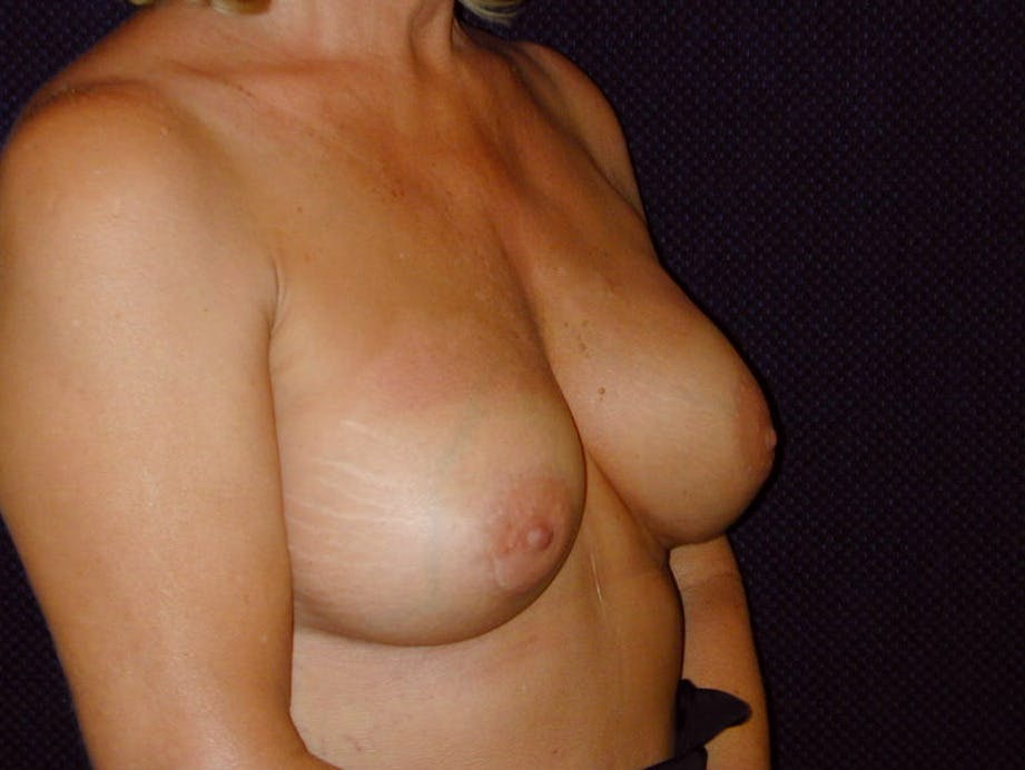 Breast Augmentation Gallery - Patient 39246078 - Image 4