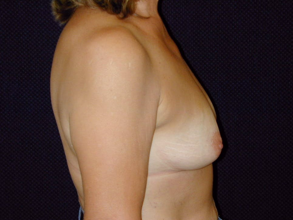Breast Augmentation Gallery - Patient 39246078 - Image 5