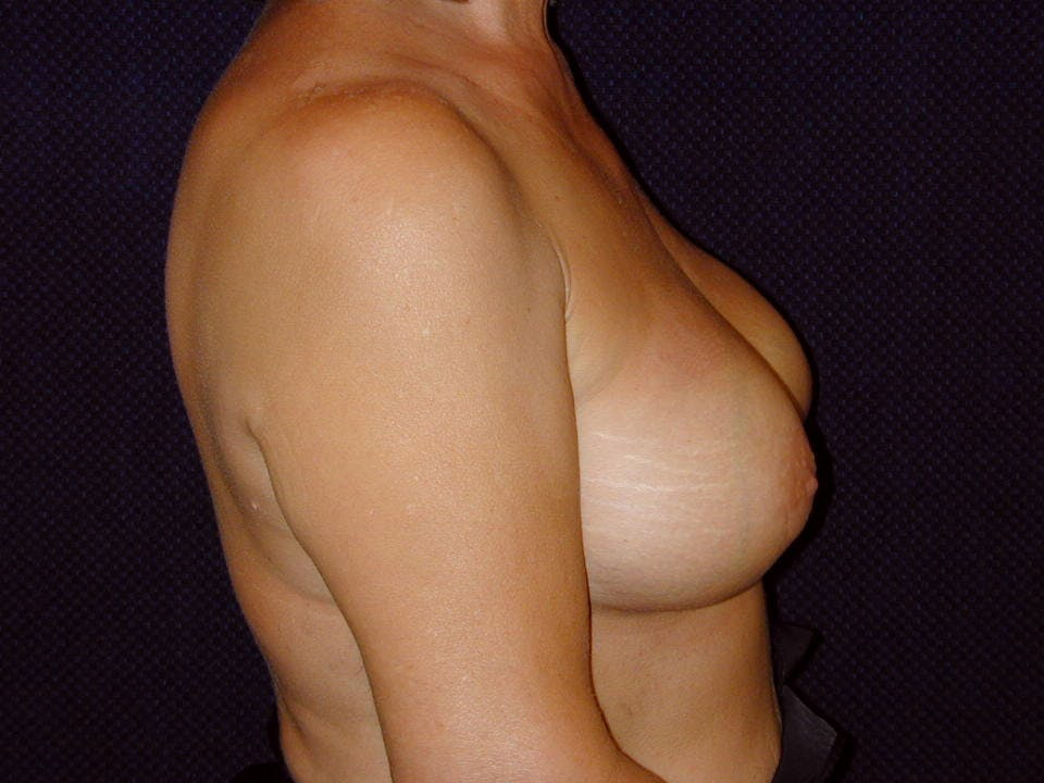 Breast Augmentation Gallery - Patient 39246078 - Image 6