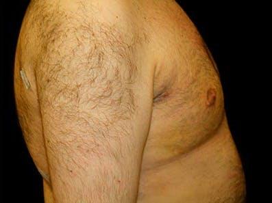 Gynecomastia Gallery - Patient 39246077 - Image 6