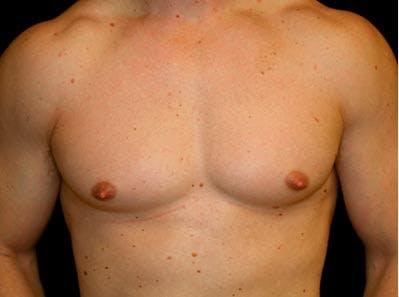 Gynecomastia Gallery - Patient 39246213 - Image 1