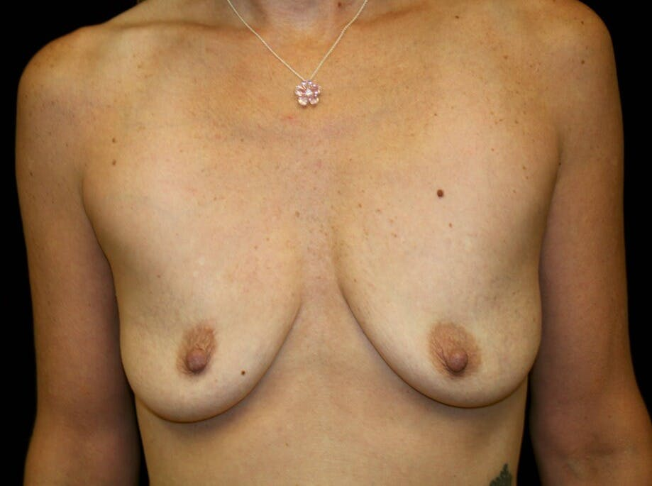 Breast Augmentation Gallery - Patient 39246214 - Image 1