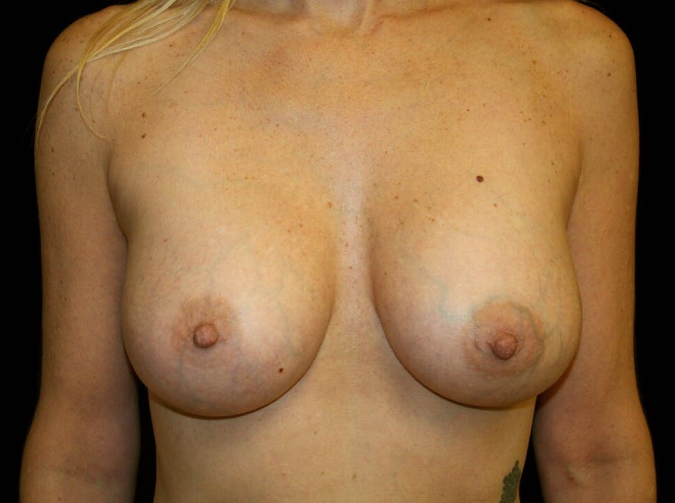 Breast Augmentation Gallery - Patient 39246214 - Image 2