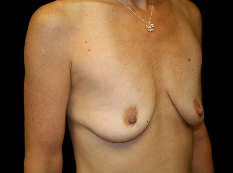 Breast Augmentation Gallery - Patient 39246214 - Image 3
