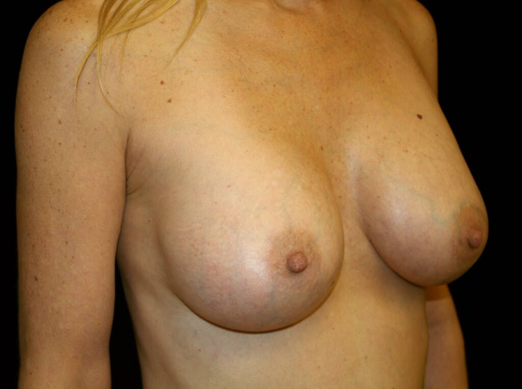 Breast Augmentation Gallery - Patient 39246214 - Image 4