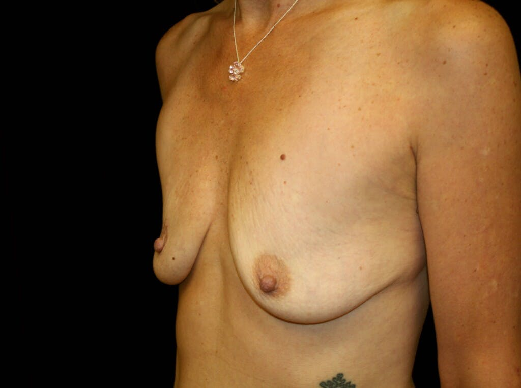 Breast Augmentation Gallery - Patient 39246214 - Image 5