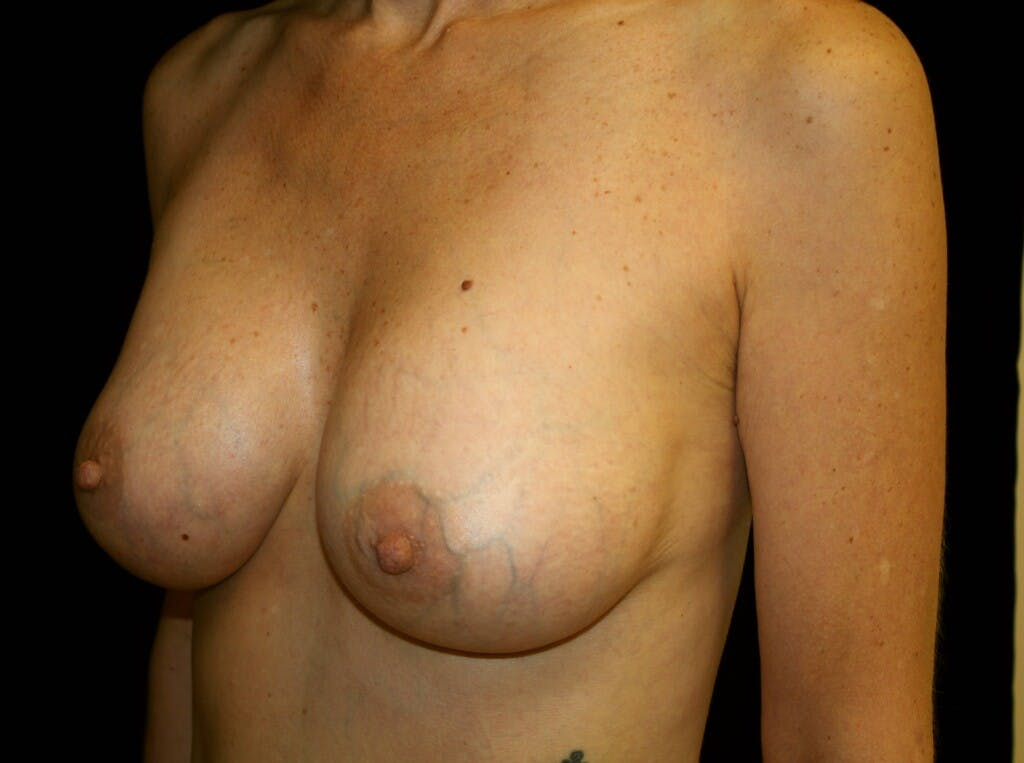 Breast Augmentation Gallery - Patient 39246214 - Image 6