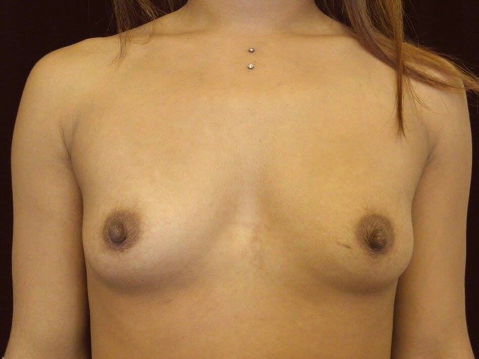 Breast Augmentation Gallery - Patient 39246227 - Image 1