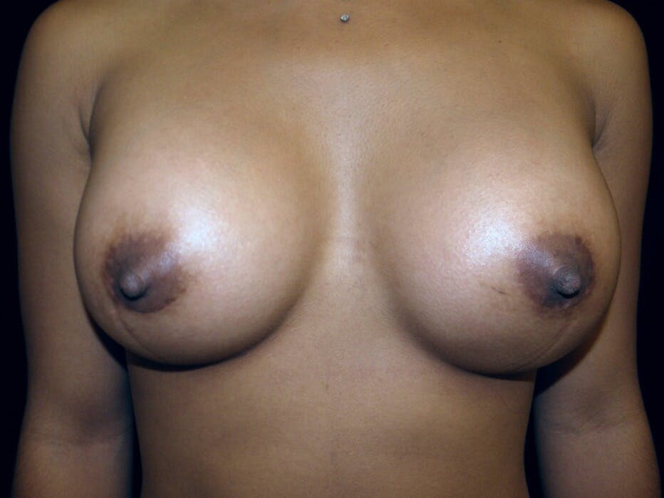 Breast Augmentation Gallery - Patient 39246227 - Image 2