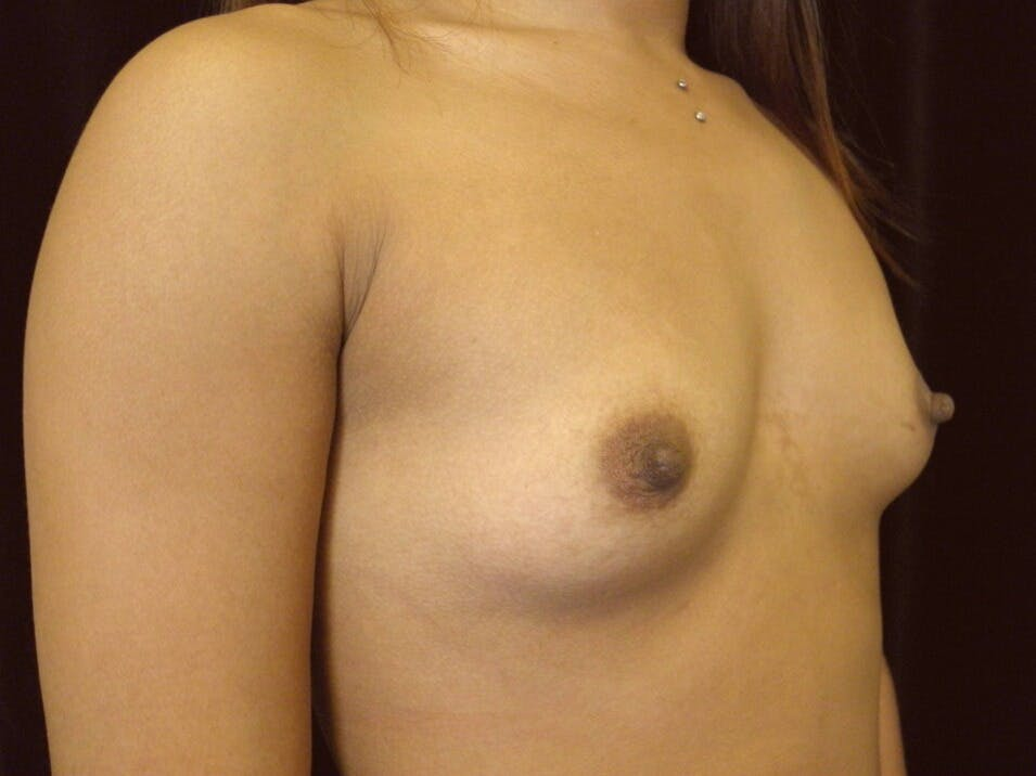 Breast Augmentation Gallery - Patient 39246227 - Image 3