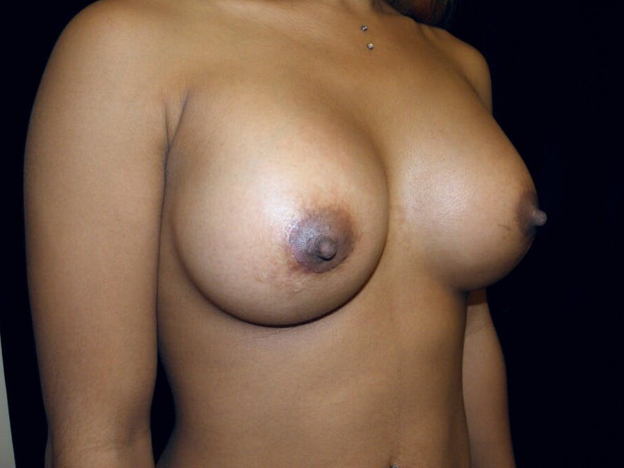 Breast Augmentation Gallery - Patient 39246227 - Image 4