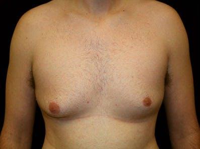 Gynecomastia Gallery - Patient 39246228 - Image 1