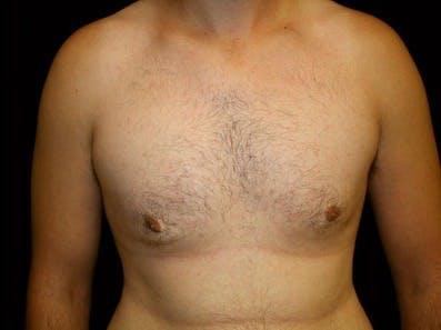 Gynecomastia Gallery - Patient 39246228 - Image 2