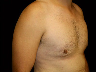 Gynecomastia Gallery - Patient 39246228 - Image 4