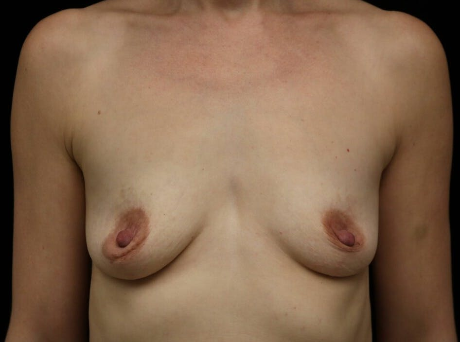 Breast Augmentation Gallery - Patient 39246229 - Image 1