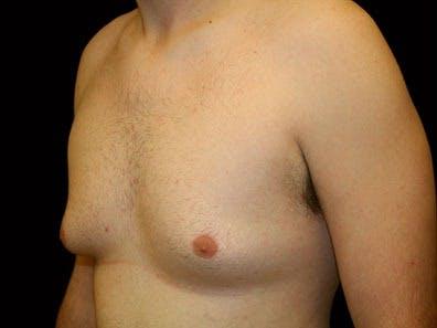 Gynecomastia Gallery - Patient 39246228 - Image 5