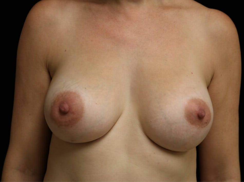 Breast Augmentation Gallery - Patient 39246229 - Image 2