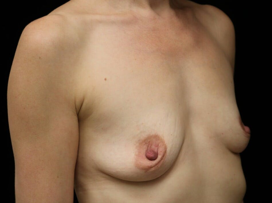 Breast Augmentation Gallery - Patient 39246229 - Image 3