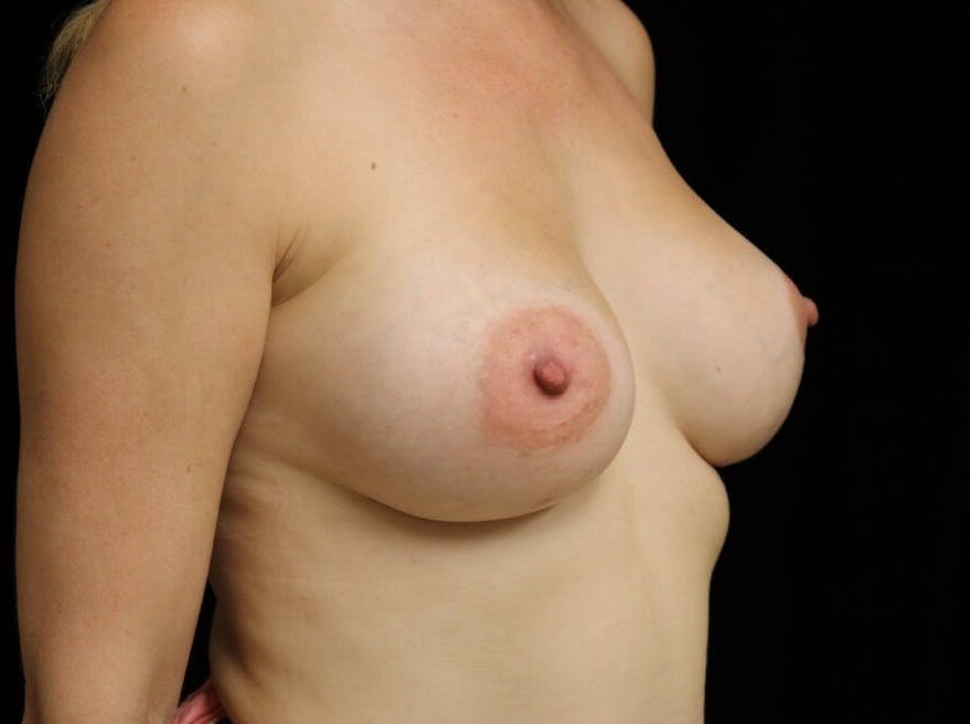Breast Augmentation Gallery - Patient 39246229 - Image 4