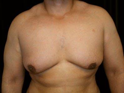 Gynecomastia Gallery - Patient 39246230 - Image 1