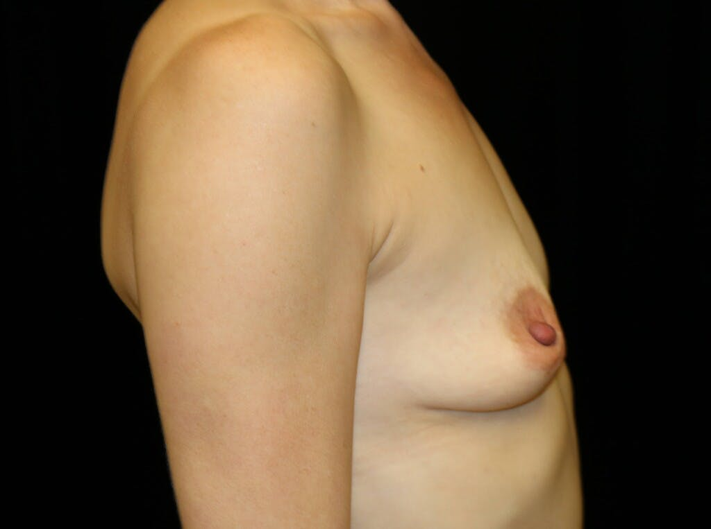 Breast Augmentation Gallery - Patient 39246229 - Image 5