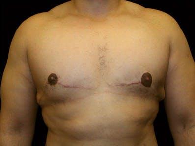 Gynecomastia Gallery - Patient 39246230 - Image 2