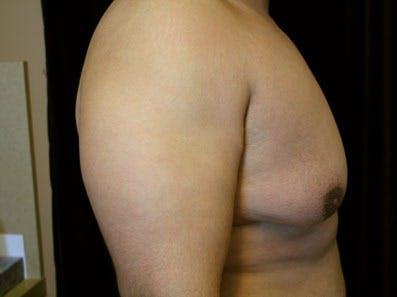 Gynecomastia Gallery - Patient 39246230 - Image 3