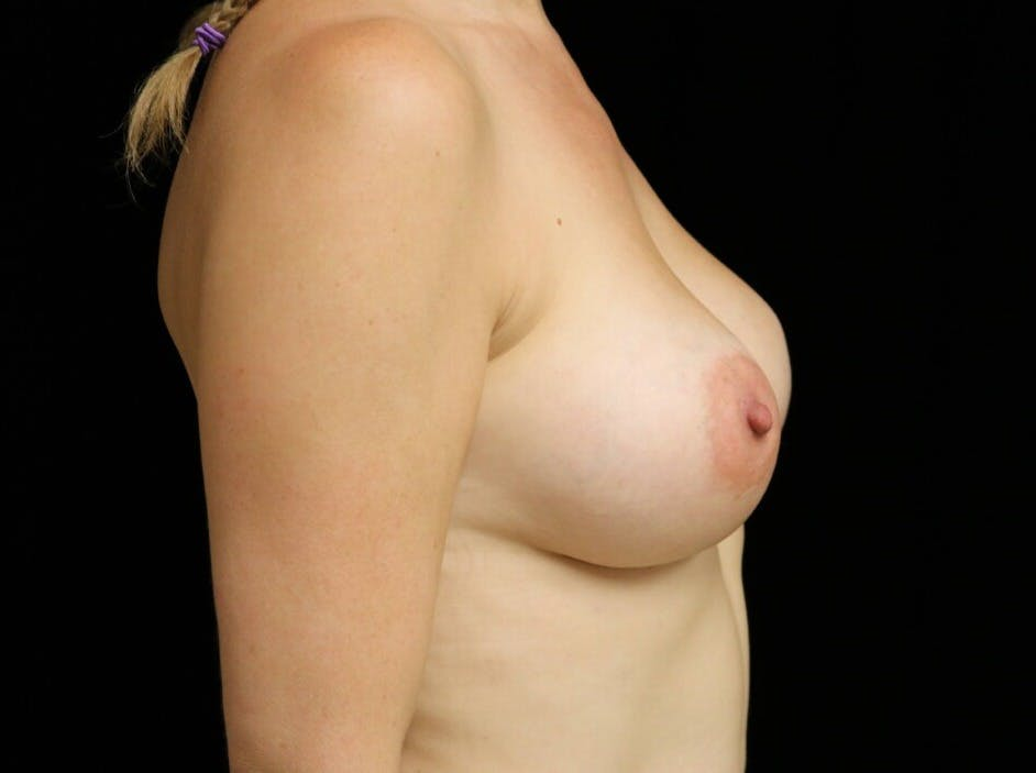 Breast Augmentation Gallery - Patient 39246229 - Image 6