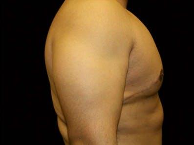 Gynecomastia Gallery - Patient 39246230 - Image 4