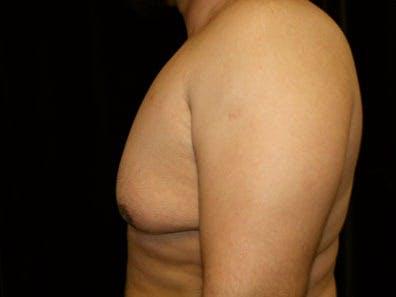 Gynecomastia Gallery - Patient 39246230 - Image 5