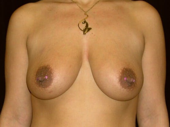 Breast Augmentation Gallery - Patient 39246231 - Image 1