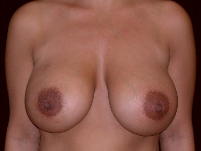 Breast Augmentation Gallery - Patient 39246231 - Image 2