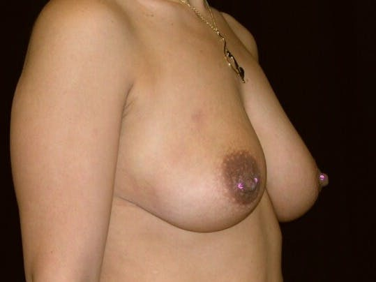 Breast Augmentation Gallery - Patient 39246231 - Image 3